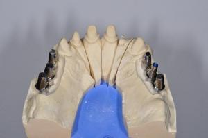 Reabilitare complexa pe implante si dinti
